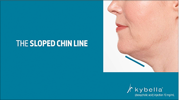 slopped-chin-line